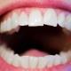 Gingivitt, tannkjøttbetennelse